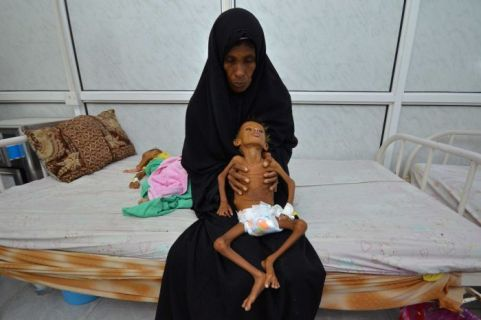Famine spreads across Yemen, with millions at risk of starvation.